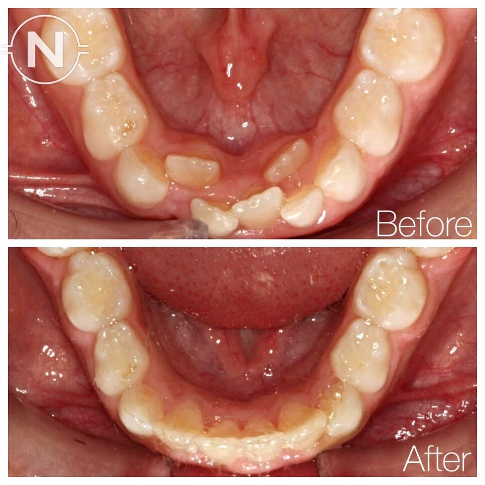 Early Orthodontic Treatment Case 1 Before After Image