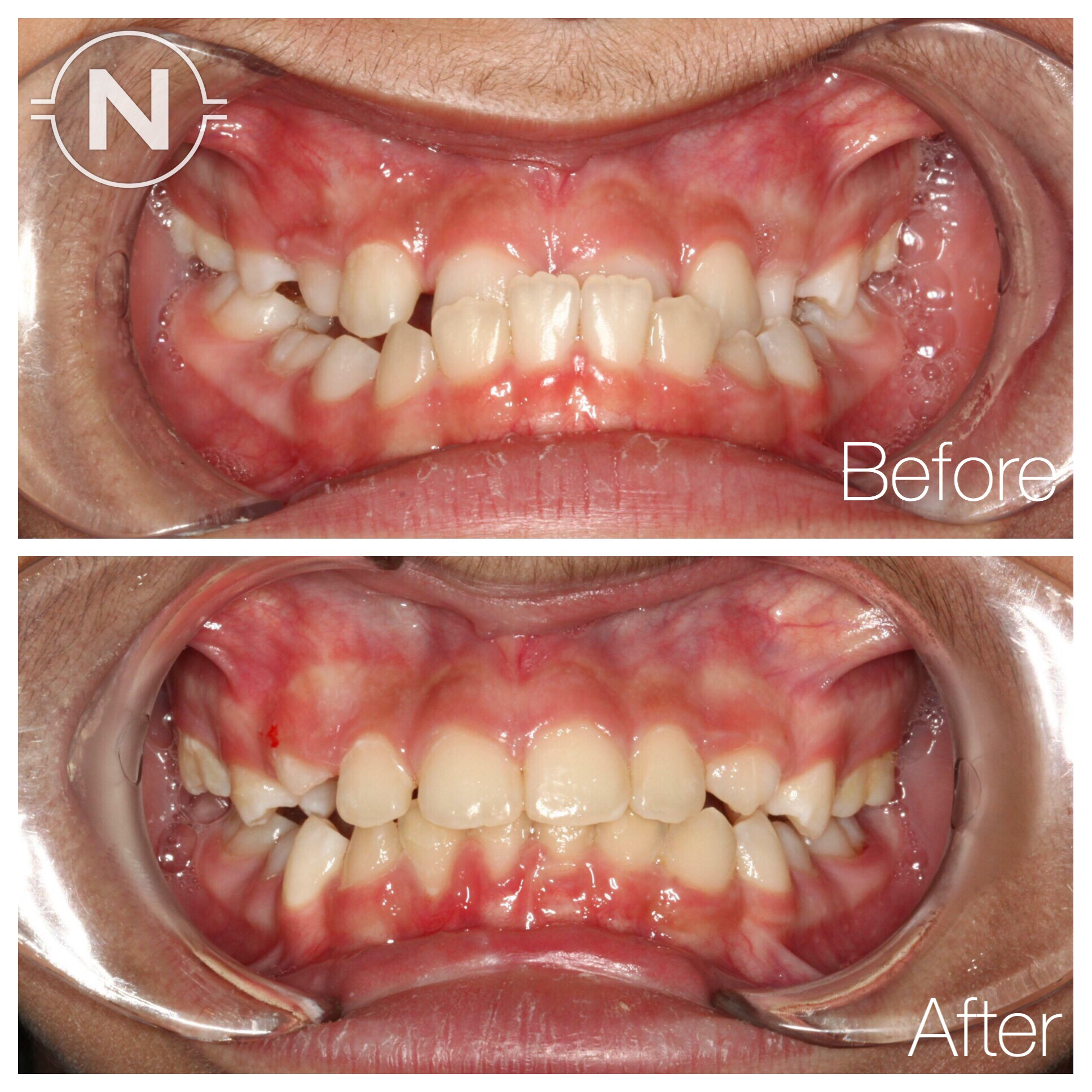 Early Orthodontic Treatment Case 3 Before After Image