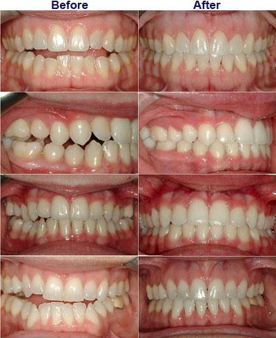alpharetta orthodontists for adult